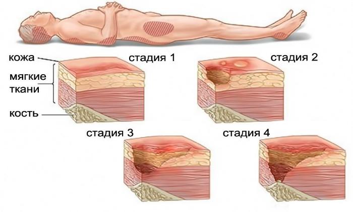 Кроме проктологии, препарат назначают при пролежнях