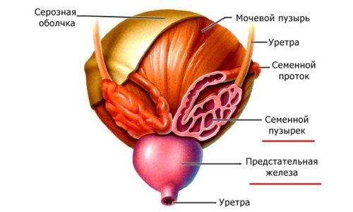 Рак предстательной железы, диагностированный на поздних стадиях развития, характеризуется выраженной симптоматикой и плохо поддается лечению
