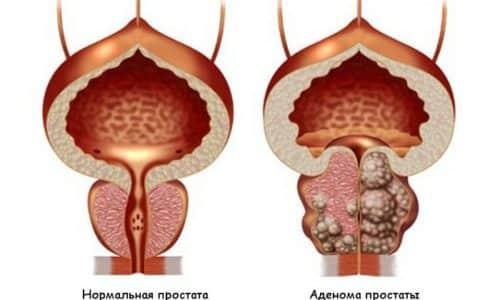 При обнаружении аденоме проводится измерение измененного органа, поскольку его размер важен для определения дальнейшего лечения