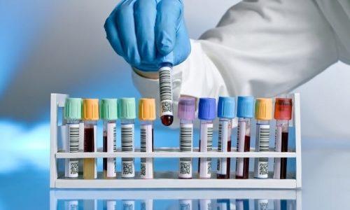 Диагностика при раке предстательной железы осуществляется с помощью анализ крови