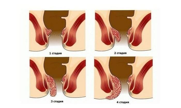 Показанием к назначению Нифедипина является хронический внешний и внутренний геморрой 1-4 стадий