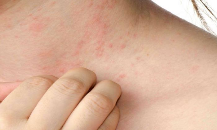 Организм женщины в «интересном» положении может отреагировать неадекватно, существует риск развития аллергических реакций