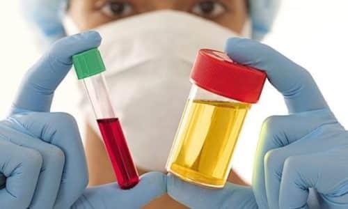 Для уточнения диагноза необходимо сдать общие клинические анализы крови и мочи