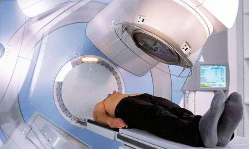 Местный рак может развиться в ткани, подвергшейся ионизирующему облучению при проведении лучевой терапии