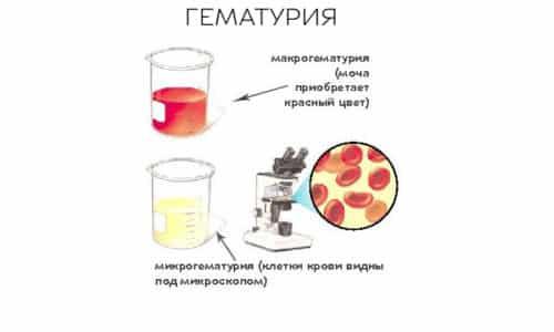 Наличие крови в биологической жидкости человека принято называть гематурией