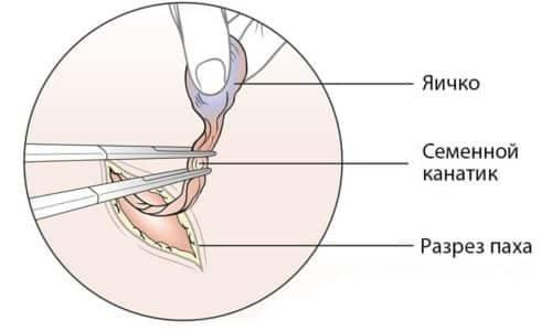 На ранних стадиях методика помогает полностью избавиться от болезни, при раке 4 стадии она облегчает состояние пациента, замедляет распространение метастазов