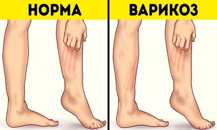 Кроме проктологии, препарат назначают при варикозной болезни нижних конечностей