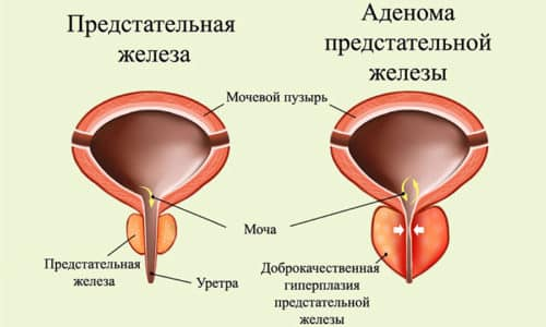 Аденома простаты - это доброкачественное образование, характеризующееся патологическим разрастанием тканей железы