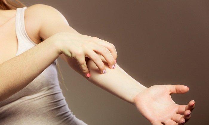 Кожный зуд — одно из побочных явлений от применения масла календулы
