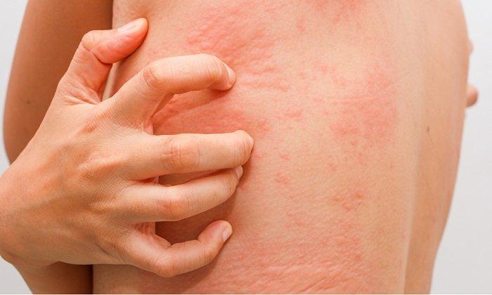 Побочные симптомы проявляются на наружных покровах: сухость кожи, зуд, жжение, покраснение, телеангиэктазия, угревая сыпь, пурпура