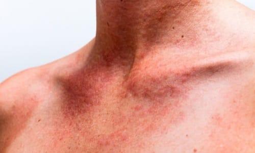 Противопоказаниями к приему перги являются имевшиеся ранее аллергические реакции на мед и другие продукты пчеловодства