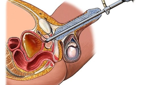 Аденомэктомия показана при гиперплазии средней доли железы, вызывающей множественные осложнения