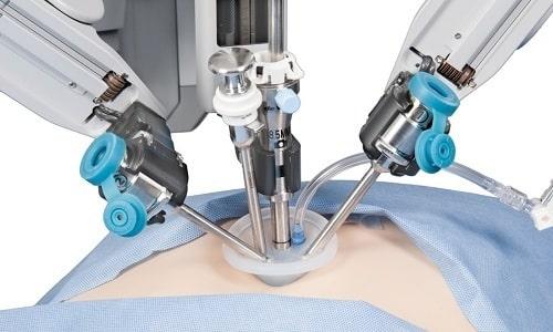 При лапароскопической аденомэктомии опухоль иссекается с минимальным риском повреждения брюшины