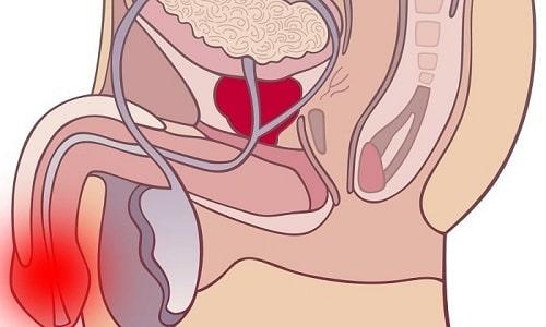 После операции может развиться воспаление в органах мочеполовой системы