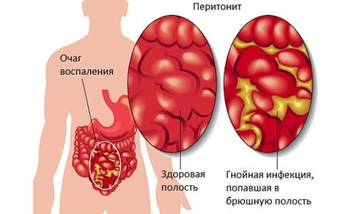 Последствиями абсцесса предстательной железы может стать перитонит