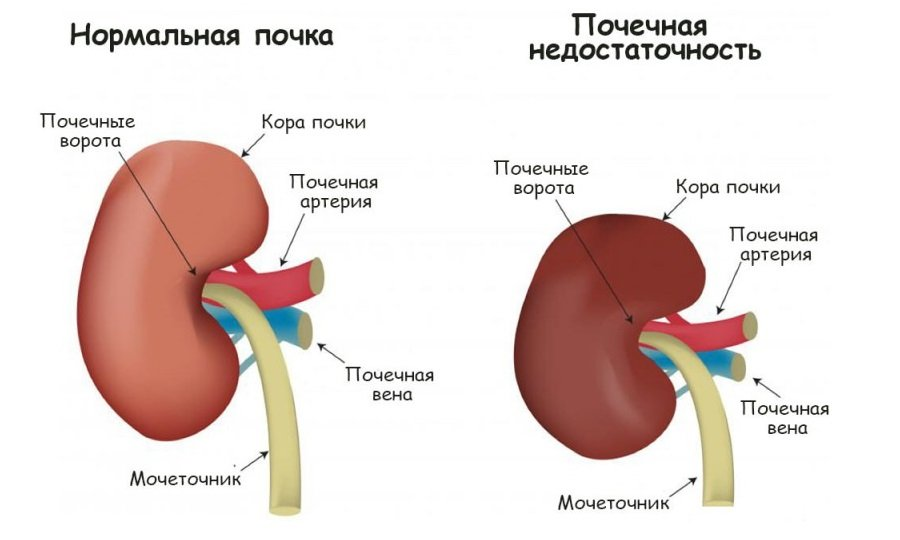 С осторожностью применяют препарат при тяжелой форме почечной недостаточности