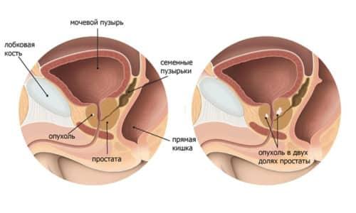 Кистозные образования в простате часто встречаются у мужчин среднего и пожилого возраста
