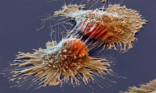 5 баллов являются признаком стадии метастазирования раковых клеток