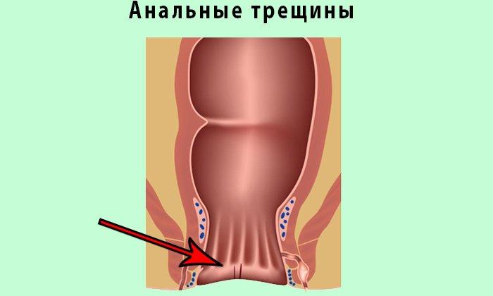 Новокаин назначается при лечении трещин заднего прохода, свищах прямой кишки