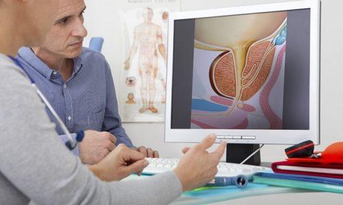 Для лечения половых расстройств сначала нужно обратиться к урологу или андрологу