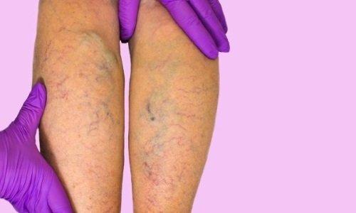 Препараты с трибензоидом снижают проницаемость венозных стенок, препятствуют их повреждению
