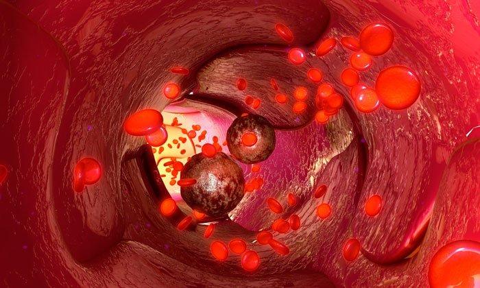 Препарат содержит флавоноиды - растительные вещества, обладающие антигистаминным действием, регулирующие проницаемость стенок сосудов