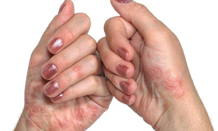 При наличии аллергических реакций на действующие компоненты препарата использовать глицериновую мазь не рекомендуется