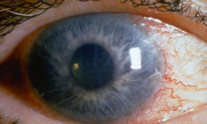 При передозировке Аеколом возможно ухудшение зрения