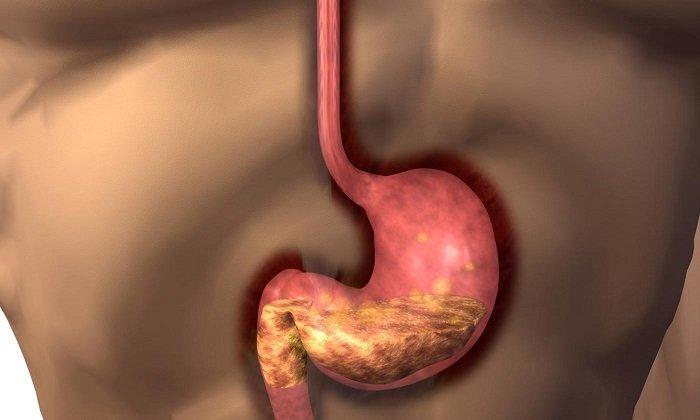При повреждениях или заболеваниях желудка принимать Домстал противопоказано