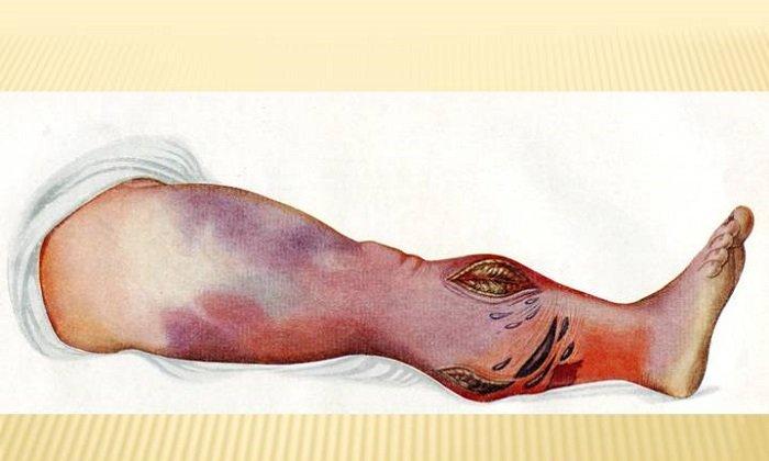 Гипозоль применяют при наличии язвенно-некротических и инфицированных ран