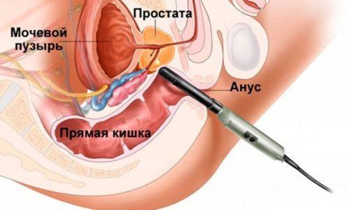 Тепловое лечение заболеваний предстательной железы относится к щадящим терапевтическим методикам. В отличие от хирургических вмешательств, не имеет тяжелых побочных эффектов