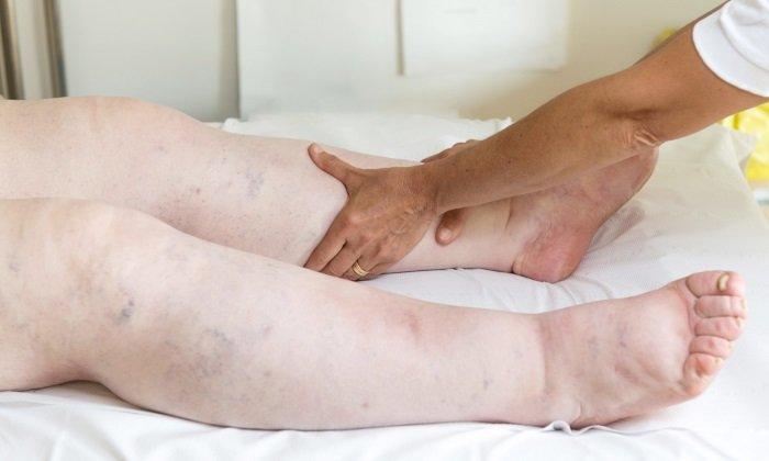 Препараты на его основе снижают отек и боль в воспалительных тканях