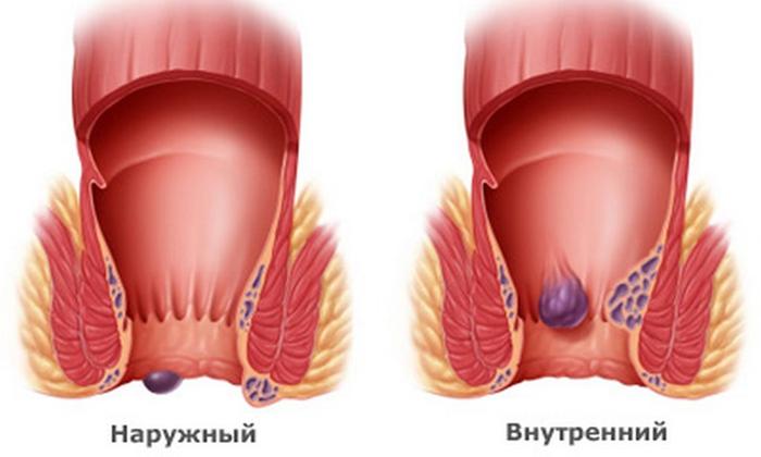 Средство противопоказано при геморрое и трещинах прямой кишки
