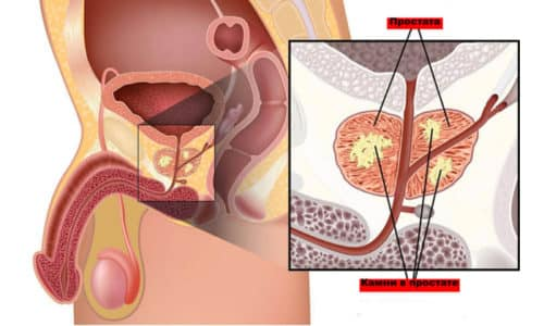 Участки повышенной эхогенности свидетельствуют о застойных явлениях в предстательной железе, а также могут быть признаком наличия кальцинатов