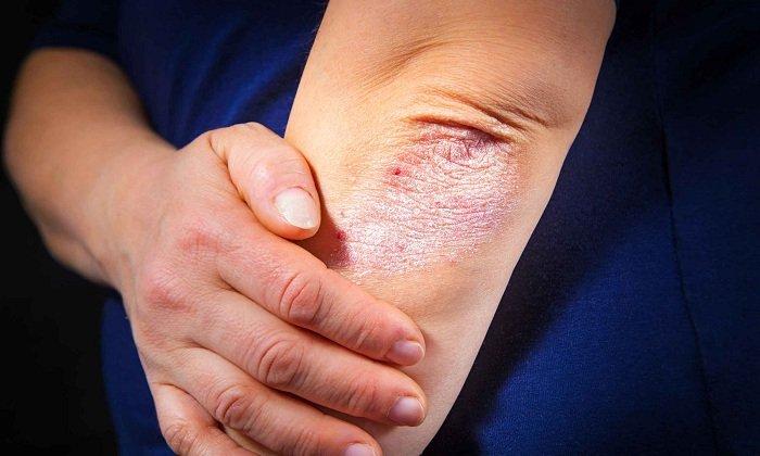Ретинол назначают при экземе век, псориазе, ихтиозе, фолликулярном кератозе и др. заболеваниях кожи