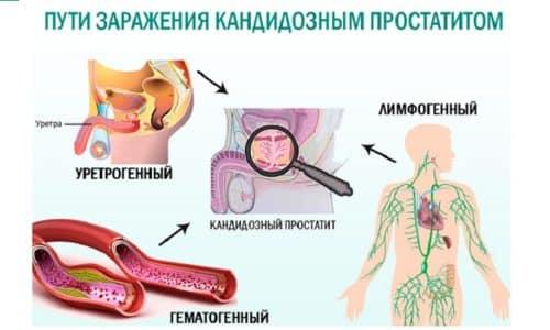 Патология вызывается грибковой инфекцией, что требует особого подхода при организации лечебных мероприятий
