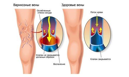 Веноле ликвидирует венозный застой крови