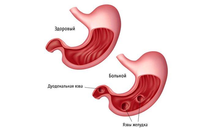 Гепарин 1000 не применяют при язве желудка