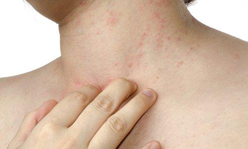 При аллергии на лекарство им не пользуются
