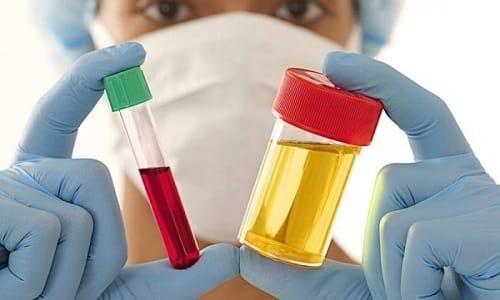 Для постановки правильного диагноза мужчина должен сдать на анализ кровь и мочу