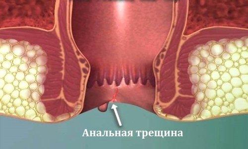 При хронической форме заболевания Гидрокортизон применяется при сильном отеке, сопровождающемся наличием трещин в заднем проходе