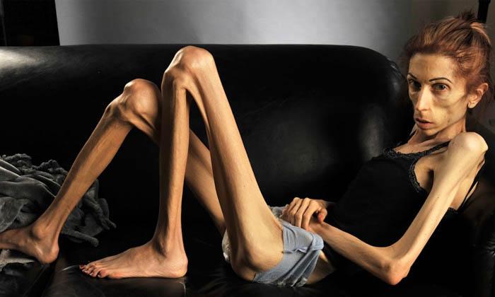 Одним из побочных эффектов приема Пикосена является возможность развития анорексии