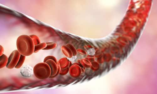 Наличие в жирной пище высокой концентрации холестерина приводит к закупориванию кровеносных сосудов холестериновыми бляшками