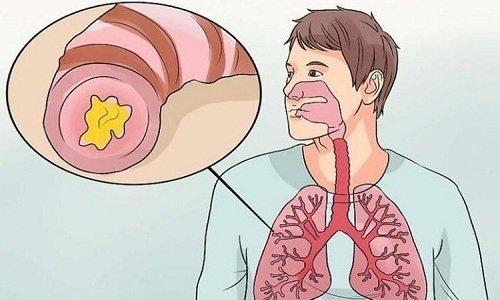 Среди противопоказаний к использованию препарата относят бронхиальную астму