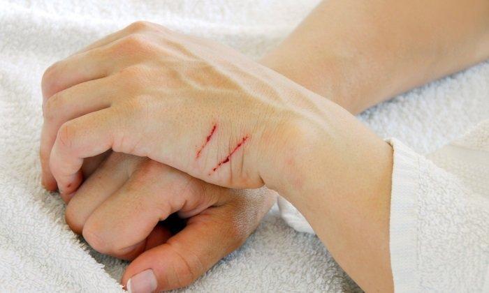 Активные компоненты вещества стимулируют регенерацию тканей, заживление ран