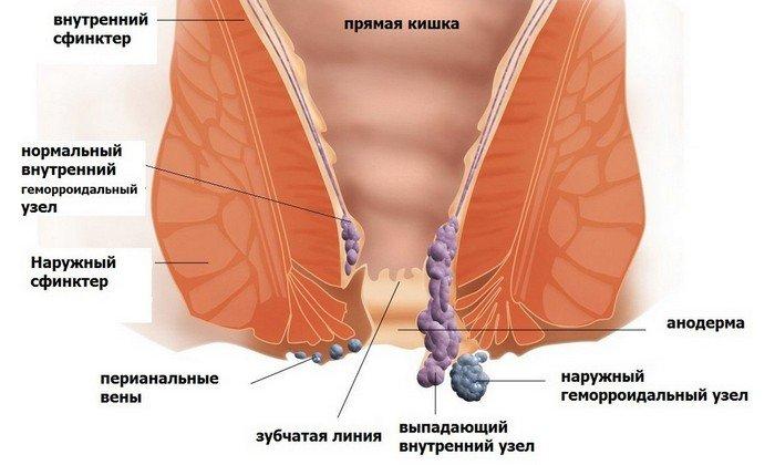 При воспалении геморроидальных узлов мазь назначается для снятия боли и воспаления.