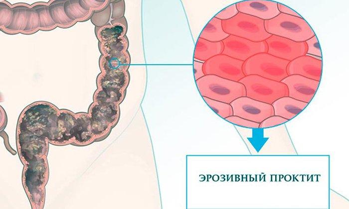 Препарат Ультрапрокт назначают при таком заболевании как проктит