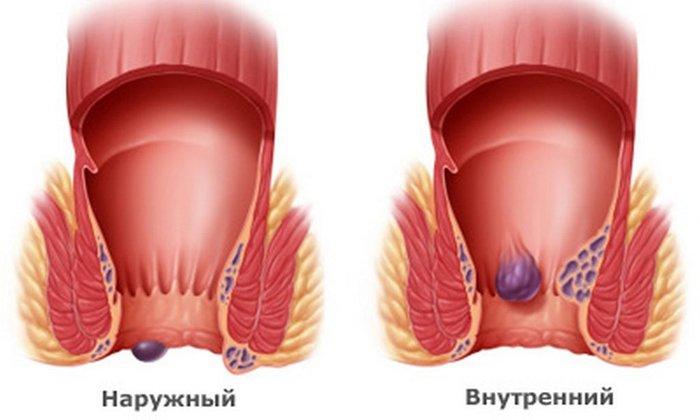 Ультрапрокт используют при воспаление внутренних, наружных геморроидальных узлов