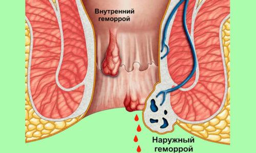 Перед месячными женщины наблюдают усиления ректального кровотечения