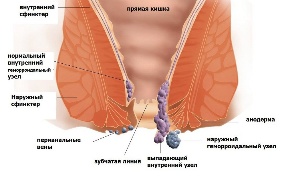 В результате совместного действия 2 компонентов расширяются сосуды прямой кишки и исчезают болевые ощущения, что особенно важно в случае выпадения геморроидальных узлов